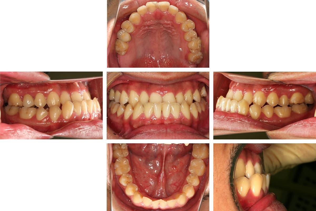 矯正前の歯並び