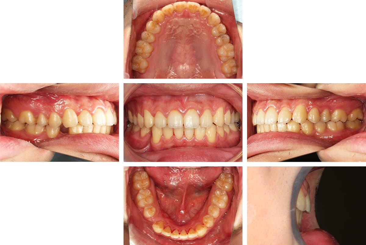 矯正後の歯並び