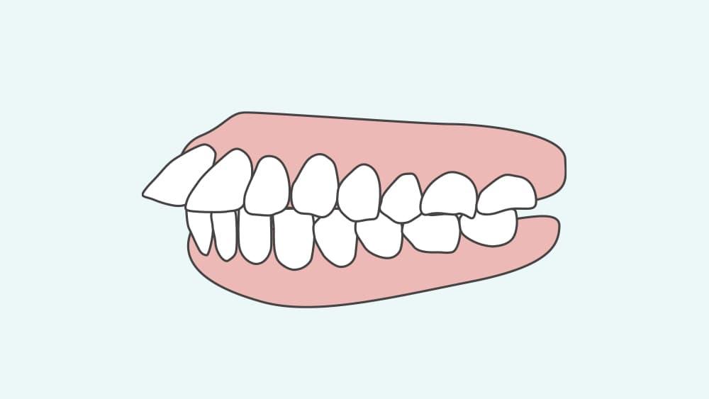 上顎前突の歯並び
