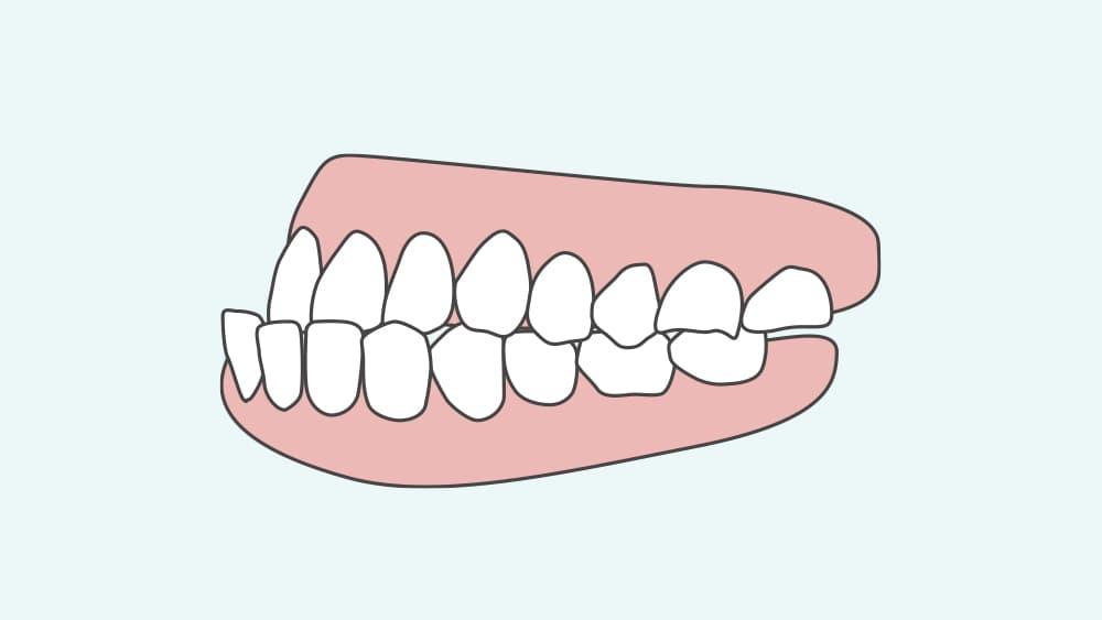 下顎前突の歯並び