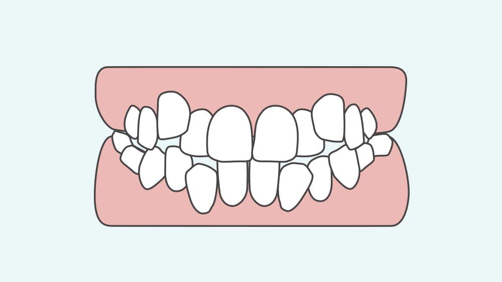 叢生の歯並び