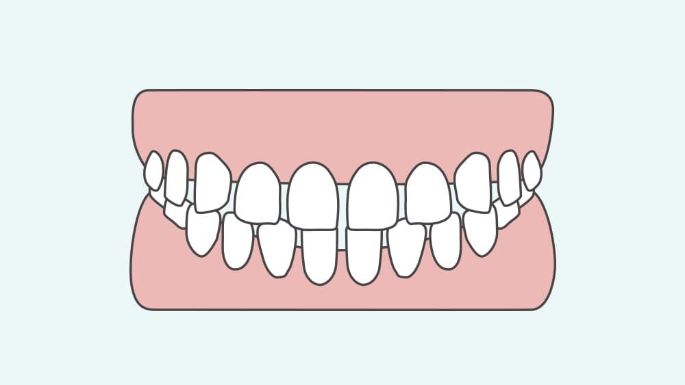 空隙歯列の歯並び