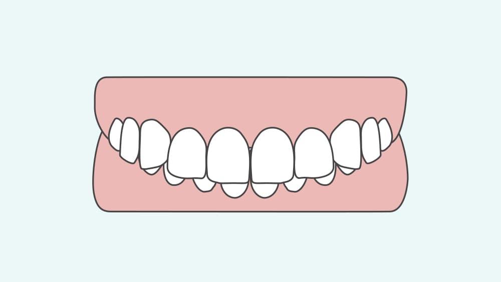 過蓋咬合の歯並び